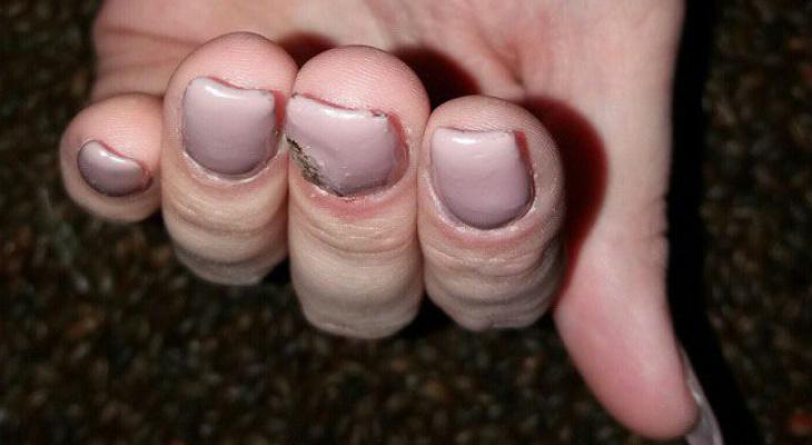 Картинки ногти нарощенные страшные