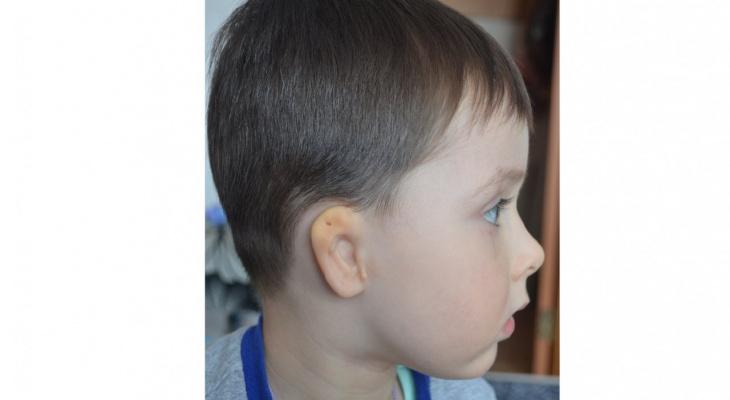 В Пижанке родился мальчик без ушного прохода