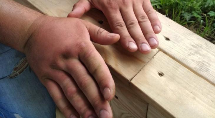После отдыха у пруда в Ключах у жителя Чепецка опухла рука