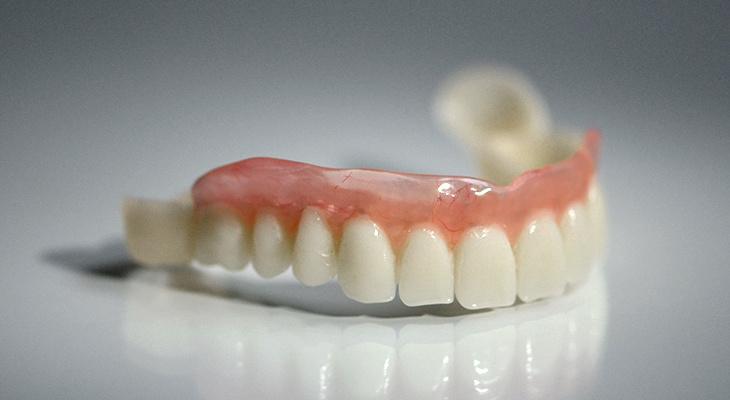 Зубной протез «Сэндвич»: преимущества неоспоримы!
