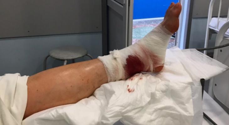 Кировчанка получила двойной перелом, поскользнувшись на льду