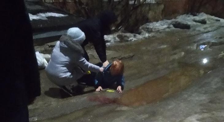 В Кирове во дворе пенсионерка поскользнулась и разбила голову