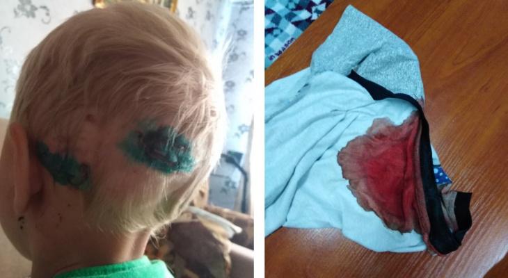 «Увидел окровавленного сына и побежал за битой: в Демьяново собака напала на 5-летнего ребенка