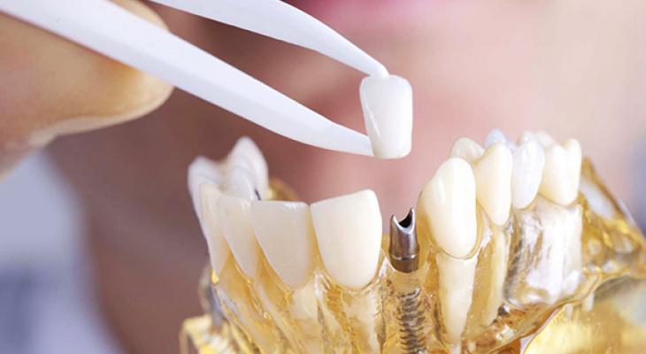 Можно ли устанавливать имплантат зуба при воспалительных процессах?