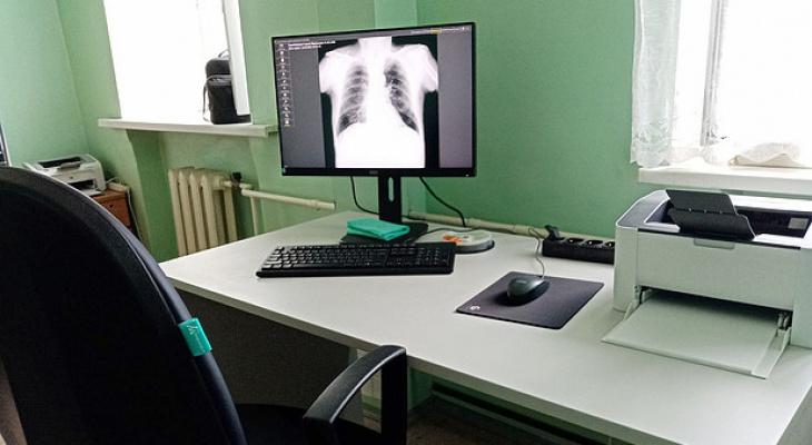 В Белохолуницком районе более 400 человек прошли обследование на флюорографе