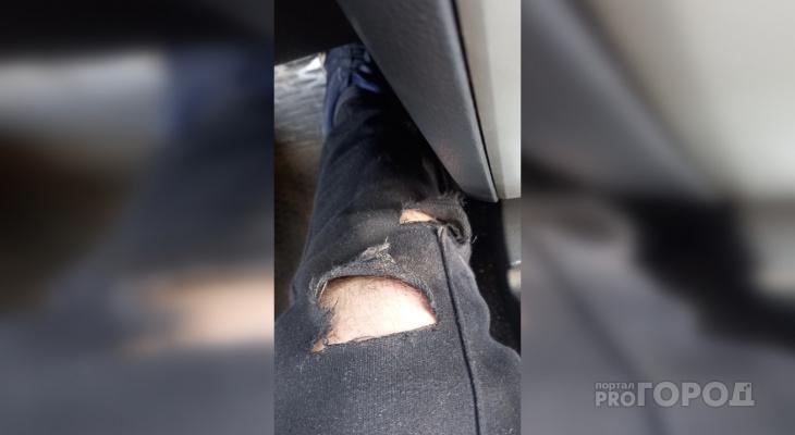 В парке у цирка на журналиста портала во время интервью напал вэдэвэшник