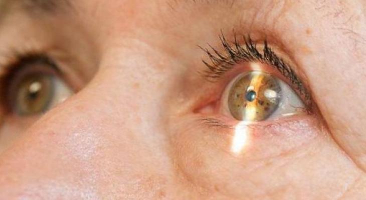 Проверьте: нет ли у вас признаков катаракты